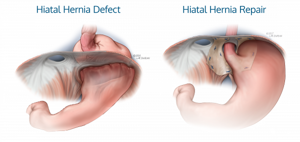 ACell_Hiatal_Hernia_DefectRepair