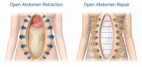 ACell_Open_Abdomen_DefectRepair