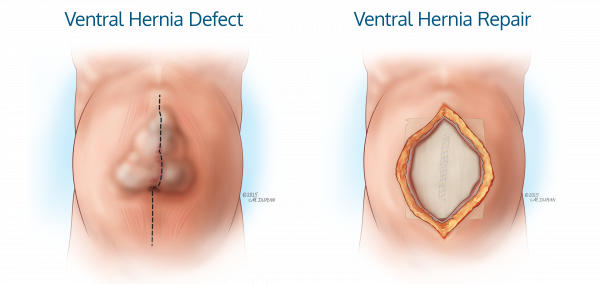 ACell_Ventral_Hernia_DefectRepair